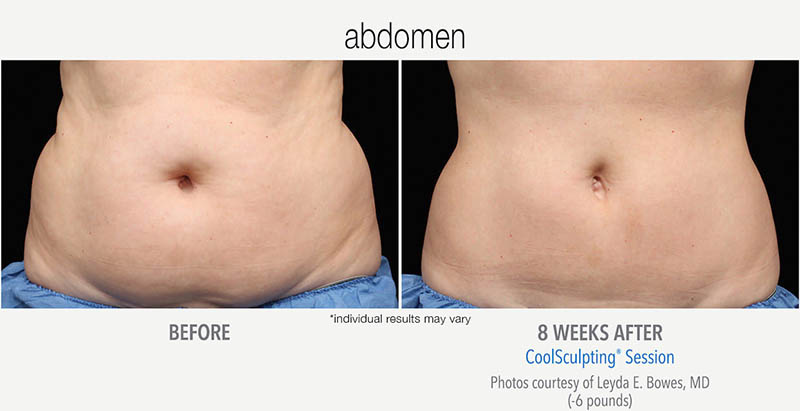 CoolSculpting Before and After Abdomen