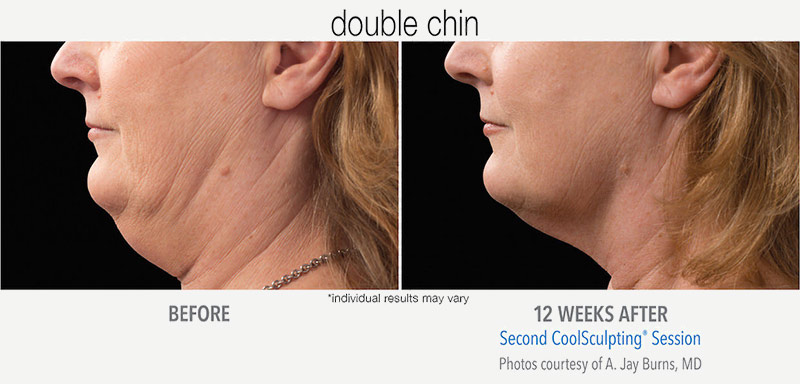 CoolSculpting Before and After Chin CoolMini