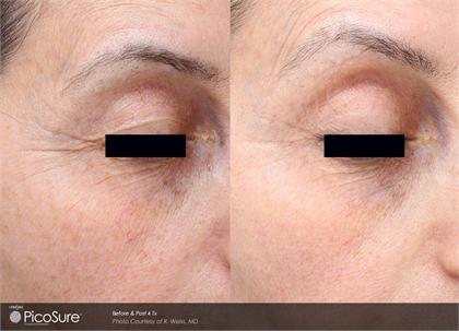 Picosure Facial Rejuvenation Greenwich Ct