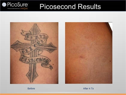 Connecticut Laser Tattoo Removal Regulation Information With Picosure Greenwich Ct