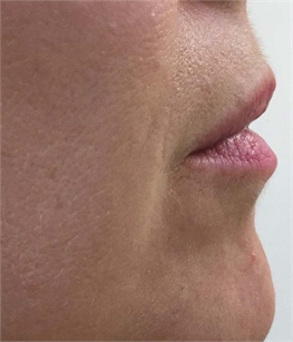 Juvederm Volbella Before and After Greenwich, CT
